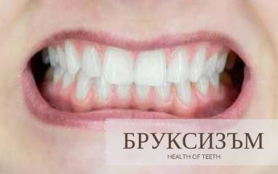 Стискане или скърцане на зъби? Бруксизъм.